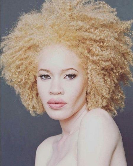 Modelos albinas como Diandra Forrest encantam o mundo.
