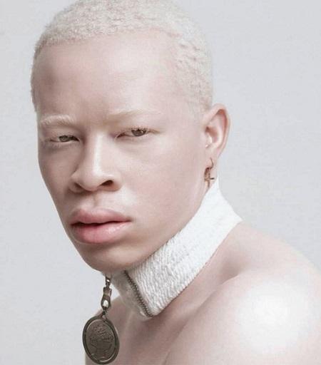 Modelos albinas como Thando Hopa encantam o mundo.